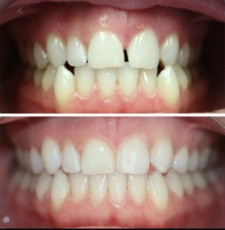 Invisalign before after ervaringen