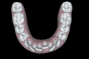Crowding tanden oplossen met de Invisalign beugel