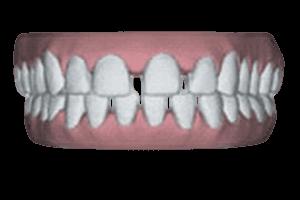 Diastemen of spleetje tussen tanden verhelpen